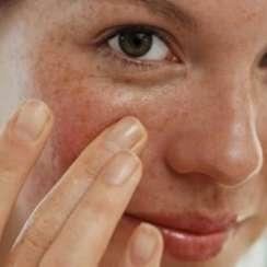 Yüzünüzdeki lekelere basit bir şekilde veda edin!