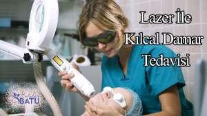 lazer ile kılcal damar tedavisi